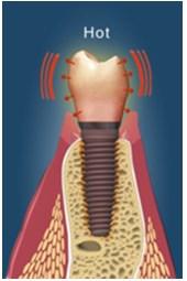 Ingrijirea implanturilor1