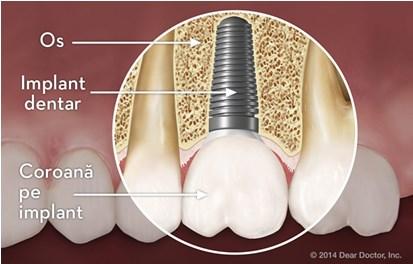 Inlocuirea cu implant dentar, inlocuiea dintilor
