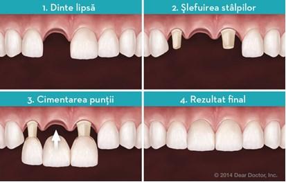 Inlocuirea cu punte dentara (proteza fixa), inlocuirea dintilor