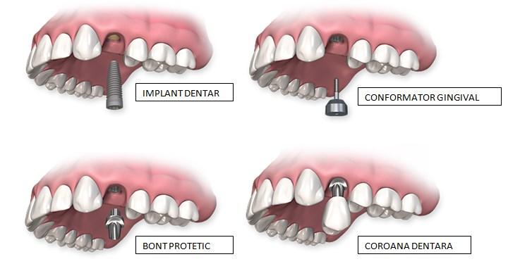 Procedura de realizare a implantului unidentar