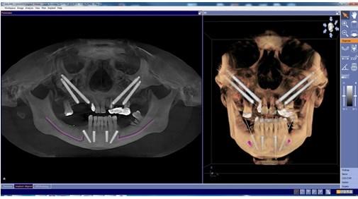 Tomografia dentara 4