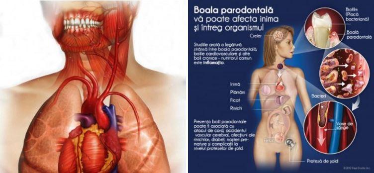 boala-parodontala-si-inima