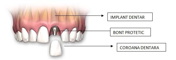 implant pentru un dinte lipsa, edentitia unilaterala, implant