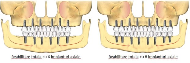 implant toti dintii, implant axial