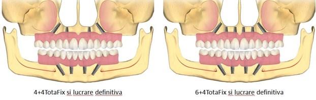 implant toti dintii lipsa