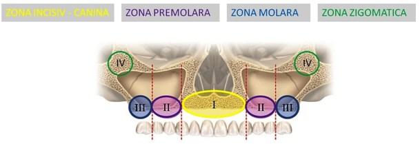 implant toti dintii