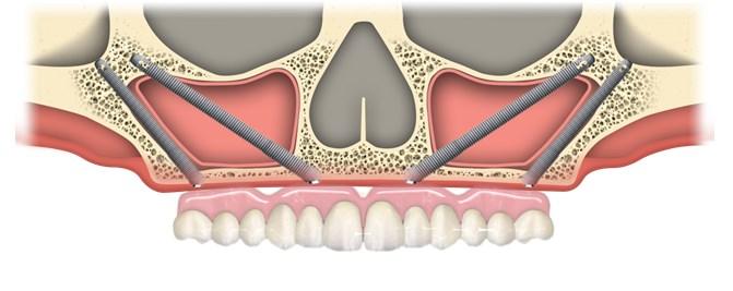 implantul zigomatic16