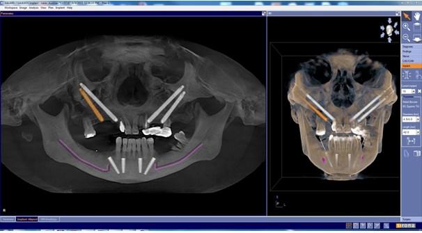 implantul zigomatic21