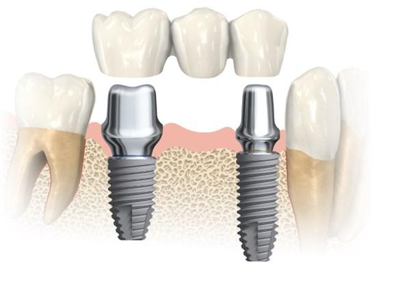 implanturi dentare, edentitie partiala