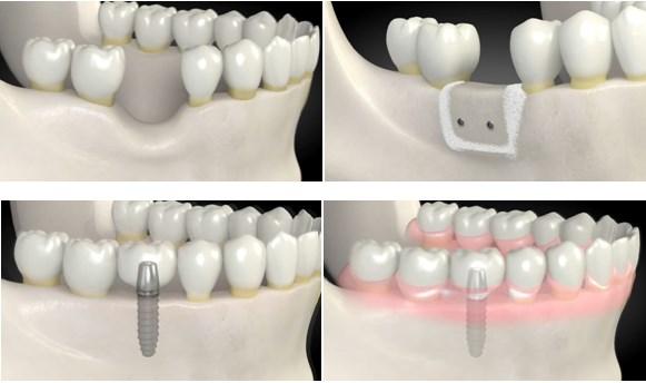 implanturi multiple, implanturi dentare, edentitie partiala