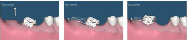 implanturi ortodontice2