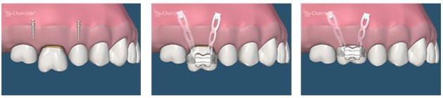 implanturi ortodontice3