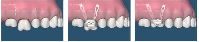 implanturi ortodontice4