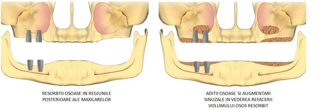 implanturi pentru toti dintiilipsa, rebsorbtie osoasa