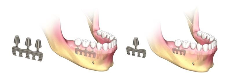 implanturi si alte tipuri de lucrari, implanturi care nu se mai utilizeaza - lama
