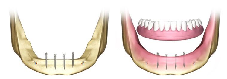 implanturi si alte tipuri de lucrari