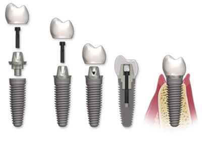 implanturi si tipuri de lucrari, lucrari dentare cimentate pe implant