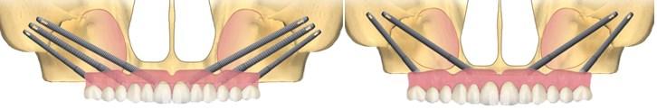 implanturi si tipuri de lucrari4