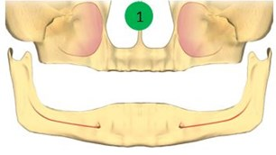implanturi toti dintii, implanturi dentare