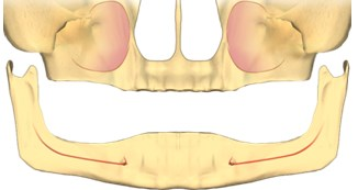 implanturi toti dintii, implanturi