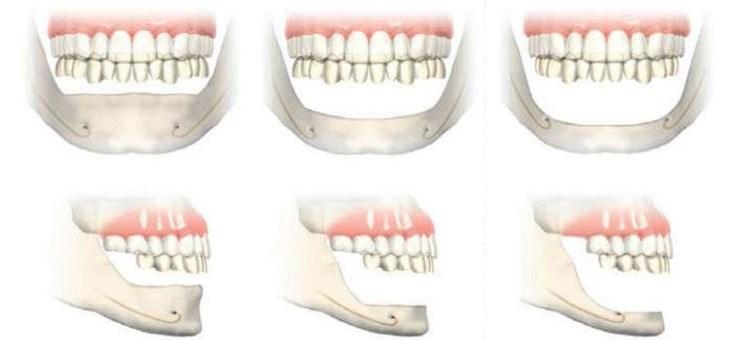 implanturi zigomatice11