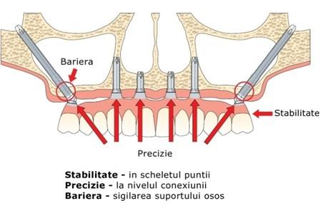 implanturi zigomatice13