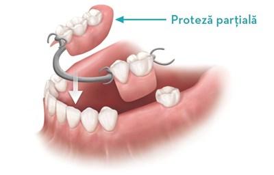 inlocuirea cu proteza mobila, inlocuirea dintilor