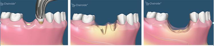 pierderea osului dupa extractia dentara