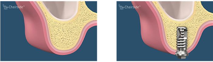 Implant standard