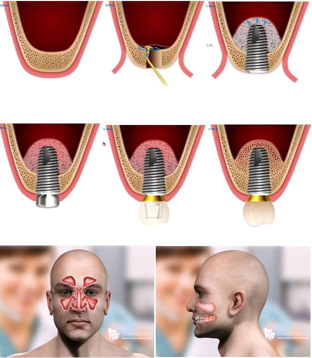 sinus lifting2