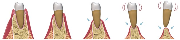 Aditia si augmentarea osoasa17