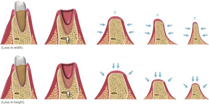 Grefarea osoasa1