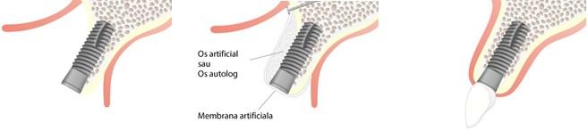 Grefarea osoasa5