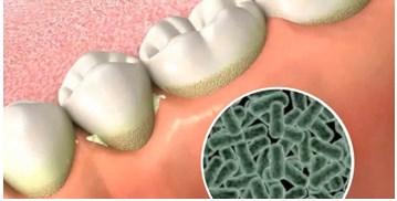 Igienizarea dentara profesionala