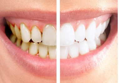 Igienizarea dentara profesionala10