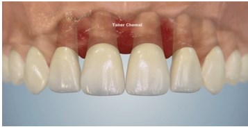 Igienizarea dentara profesionala2