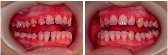 Igienizarea dentara profesionala3