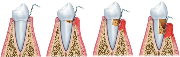 Igienizarea dentara profesionala9