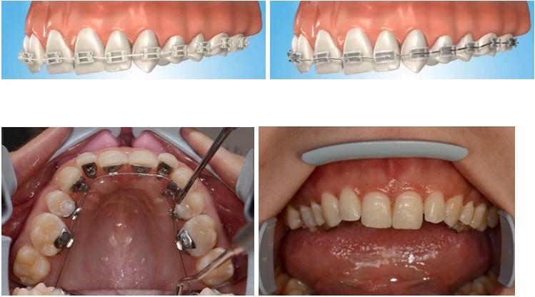 Ortodontie - indreptarea dintilor1