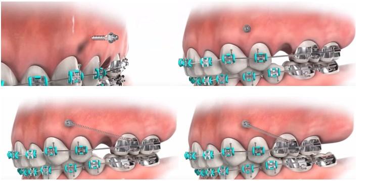 Ortodontie - indreptarea dintilor8