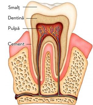 Terapie - caria dentara