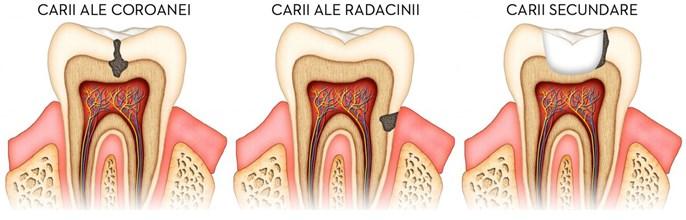 Terapie - caria dentara1