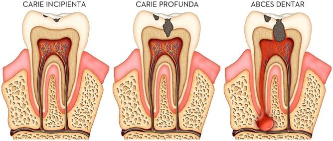 Terapie - caria dentara2