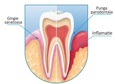 Tratamentul bolii paradontale 14
