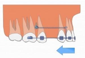 Implant ortodontic2