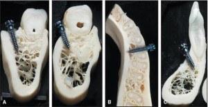 Miniimplant ortodontic