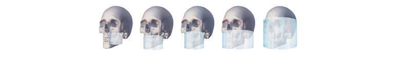 tomografia-dentara