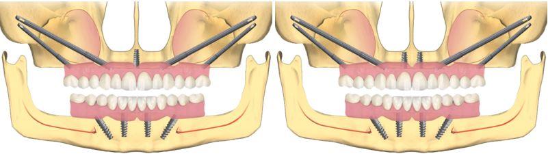 4-implanturi-zigomatice-si-1-sau-2-conventionale