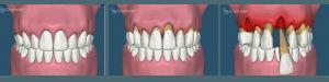 boala parodontala si pierdere os1