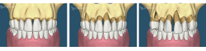 boala parodontala si pierdere os2